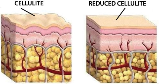 cellulite_reduction